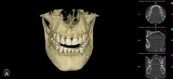 sacramento wellness dentistry 3d imaging front view