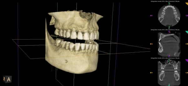 sacramento wellness dentistry 3d imaging right view