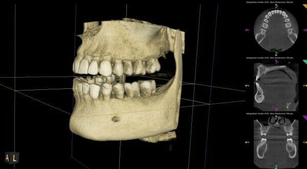 sacramento wellness dentistry 3d imaging left view