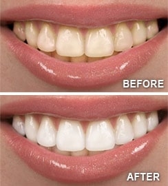 sacramento wellness dentistry before and after teeth whitening