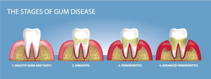 sacramento wellness dentistry stages of gum disease